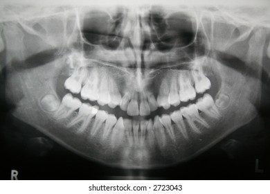Dental X-ray of teeth showing fillings and spine