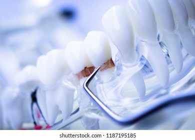 Dentist cleaning teeth with titanium metal tooth pick instrument to remove plaque and decay.