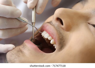 dentist conversation man patient open mouth during oral checkup with mirror near by,  Trust in medicine treatment with professional doctor for good healthcare in clinic office room concept.