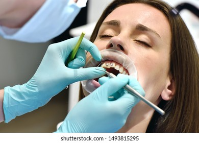 Dentist In Denal Clinic Examine Patient With Braces. close up