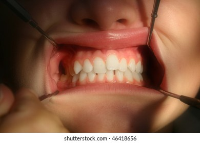 Dentist dental inspection of child closeup