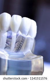 Dentist dental teeth teaching model showing titanium metal tooth implant screw.