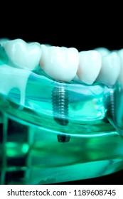 Dentist dental teeth teaching model showing titanium metal tooth implant screw.