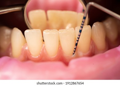the dentist examines the depth of the patient's gums