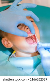 Dentist examining boy's teeth in clinic. A small patient in the dental chair smiles. Dantist treats teeth. close up view of dentist treating teeth of little boy in dentist office. vertical photo.