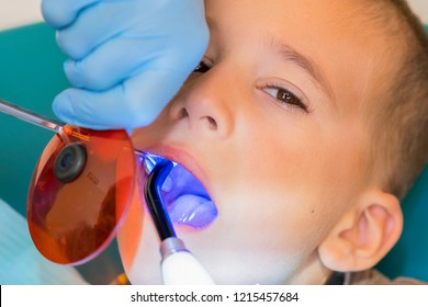 Dentist examining boy's teeth in clinic. A small patient in the dental chair smiles. Dantist treats teeth. close up view of dentist treating teeth of little boy in dentist office.