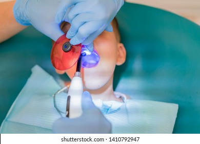Dentist examining boy's teeth in clinic. A small patient in the dental chair smiles. Dantist treats teeth. close up view of dentist treating teeth of little boy in dentist office