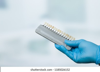 Dentist hand with shade guide to check veneer of tooth crown in a dental laboratory