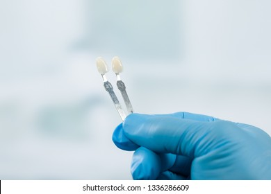 Dentist hand with shade guides to check veneer of tooth crown in a dental laboratory