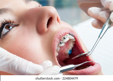 Dentist hands working on young teen patient with dental braces.