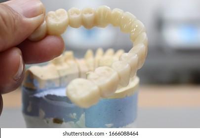 Dentist hold the zirconia bridge to fix to the patient