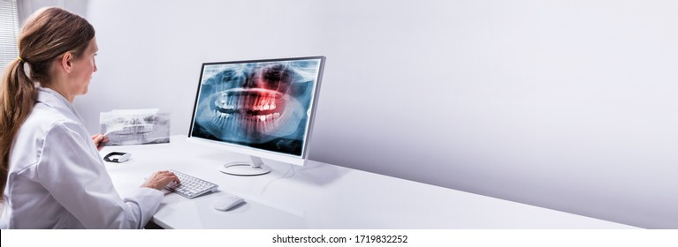 Dentist Looking At Teeth Xray Scan On Computer