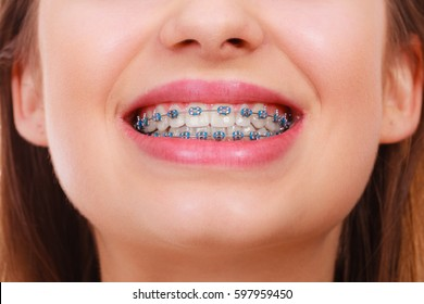 Dentist and orthodontist concept. Closeup of woman smile showing teeth with blue braces