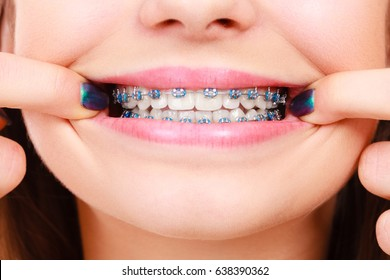 Dentist and orthodontist concept. Woman smile showing her white teeth with blue braces
