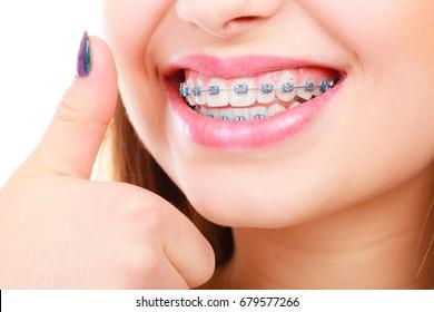Concepto dentista y ortodoncista. Una mujer sonríe mostrando sus dientes blancos con cordones azules, un gesto de pulgar arriba.