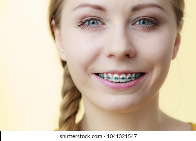 Dentist and orthodontist concept. Young woman teen girl smiling showing teeth with blue braces