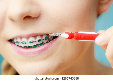 Dentist and orthodontist concept. Young woman with blue braces cleaning and brushing teeth using little toothbrush, interdental brush