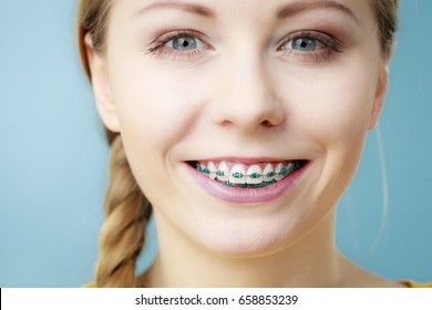 Dentist and orthodontist concept. Young woman teen girl smiling showing teeth with braces, on blue