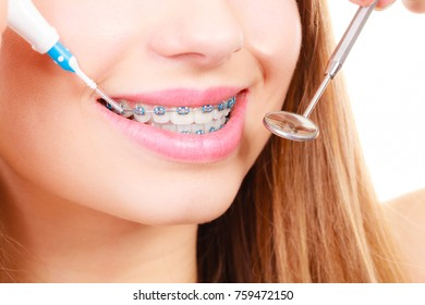 Dentist and orthodontist concept. Young woman smiling cleaning and brushing teeth with blue braces using toothbrush and mirror