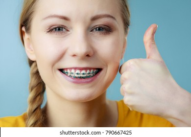 Dentist and orthodontist concept. Young woman teen girl smiling showing teeth with braces, making thumb up hand sign gesture, on blue