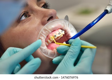 dentist prepares patient's teeth for install braces. close up