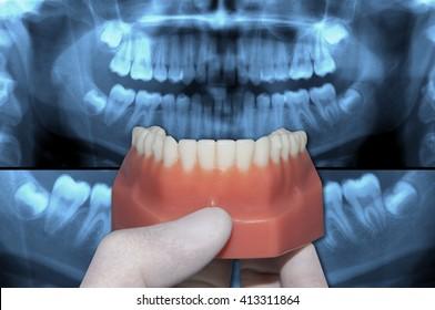 dentist show mandibular dental arch over panoramic x-ray teeth