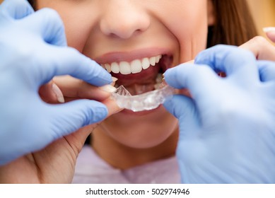 Dentist showing to the female patient how to use mobile orthodontic appliance for dental correction. Close-up.