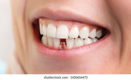 Dentist tools. Beautiful young woman smile with closeup of tooth implant for healthcare design. Healthy teeth. Orthodontic treatment. Dental care.