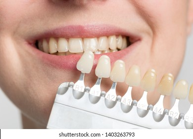 dentist using shade guide at woman's mouth to check veneer for bleaching