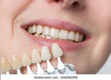 dentist using shade guide at woman's mouth to check veneer of teeth for bleachinng or new denture parts