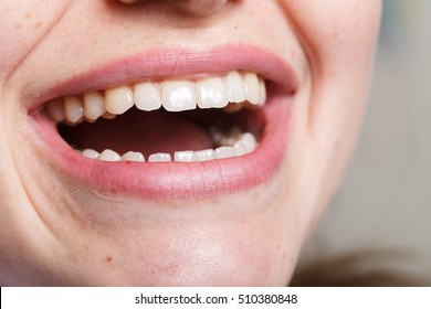 dentistry, dental , mouth and teeth close up smiling