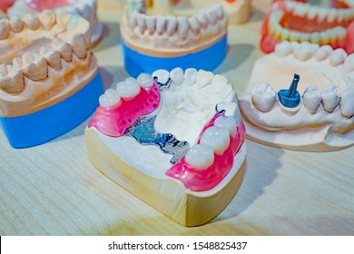 Dentistry. The sandwich denture. Removable denture. Orthopedic dental constructions. Clasp prosthesis. Prosthetic dentistry. Prosthetic dentistry. Models of patients ' jaws.