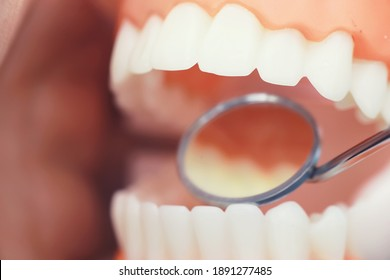 Dentist's office. Dentist examines the oral cavity treatment. The doctor shows a course of treatment. Caries treatment. Implantation and installation of veneers.