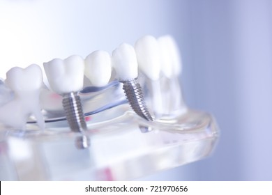 Dentsts dental prosthetic teeth, gums, roots teaching student model with titanium metal screw implant.