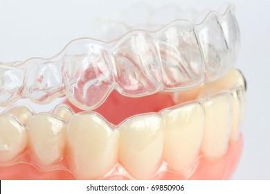 Denture with braces