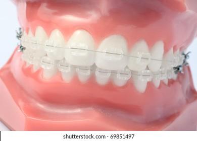 Denture with brackets