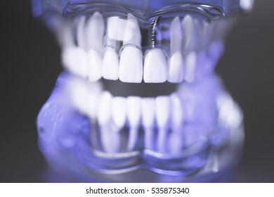Denture for dentistry students with different health problems