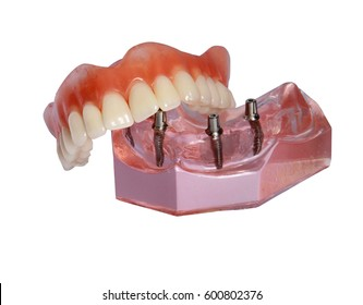 Denture lies on model of  top tooth jaw with implants isolated on  white background