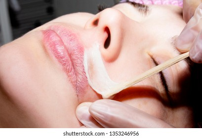 Depilation with hot wax mustache in the beauty salon. Young woman receiving facial epilation close up. Cosmetologist removes hair on face. Beauty salon, mustache depilation