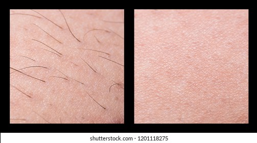 Depilation and sugaring. Hair removal. follicle. Woman leg with sugar or wax. Before and after. Process and steps of depilation.