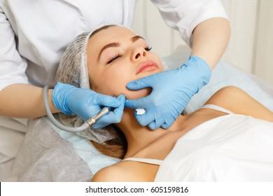 Dermabrasion cheekbones girl. Instrumental cosmetology. Spa. Facial Rejuvenation. Mechanical peeling skin.