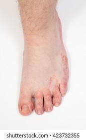 dermatitis on foot, athlete's foot disease