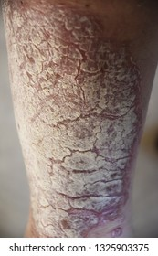 Dermatological skin disease, psoriasis is an autoimmune disease that affects the skin. Skin inflammation red and scaly also white pearl like plaques.