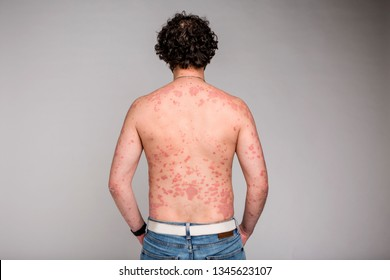 Dermatological skin disease, psoriasis, more pronounced on the elbows,Psoriasis skin. Psoriasis is an autoimmune disease that affects the skin cause skin inflammation red and scaly