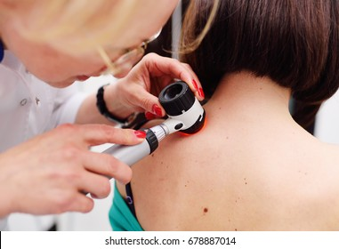 The dermatologist examines the moles or acne of the patient with a dermatoscope. Prevention of melanoma