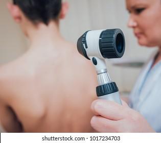 Dermatologist examines patient birthmark with dermatoscope. Medical equipment.