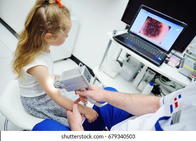 The dermatologist examines the patient's moles with the help of a special device for the dematoscopy - dermatoscope. Prevention of melanoma