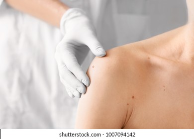 Dermatologist examining birthmark of patient, closeup. Cancer concept