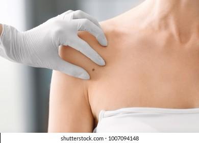 Dermatologist examining birthmark of patient, closeup. Cancer concept