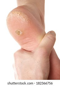 Dermatologist examining a foot for callus and dry skin, towards white